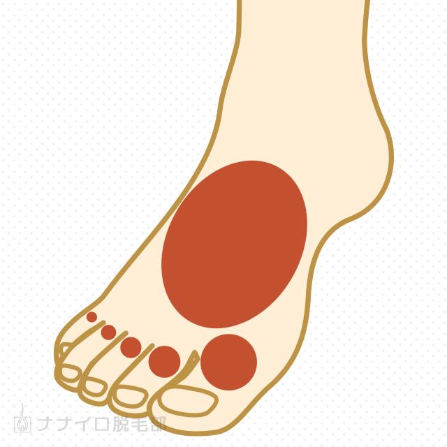 両足の甲・指脱毛の最安値